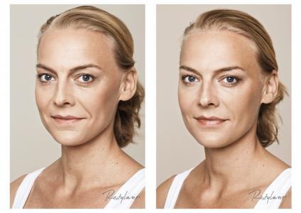 Voor en na foto's van een client na de behandeling van de wallen, wangen en neuslippenplooi.